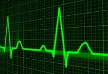 pulse-trace-healthcare-medicine-heartbeat